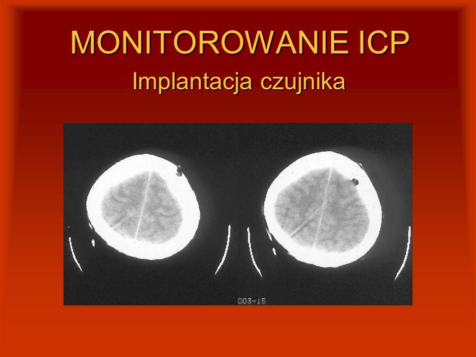 MONITOROWANIE ICP Implantacja czujnika
