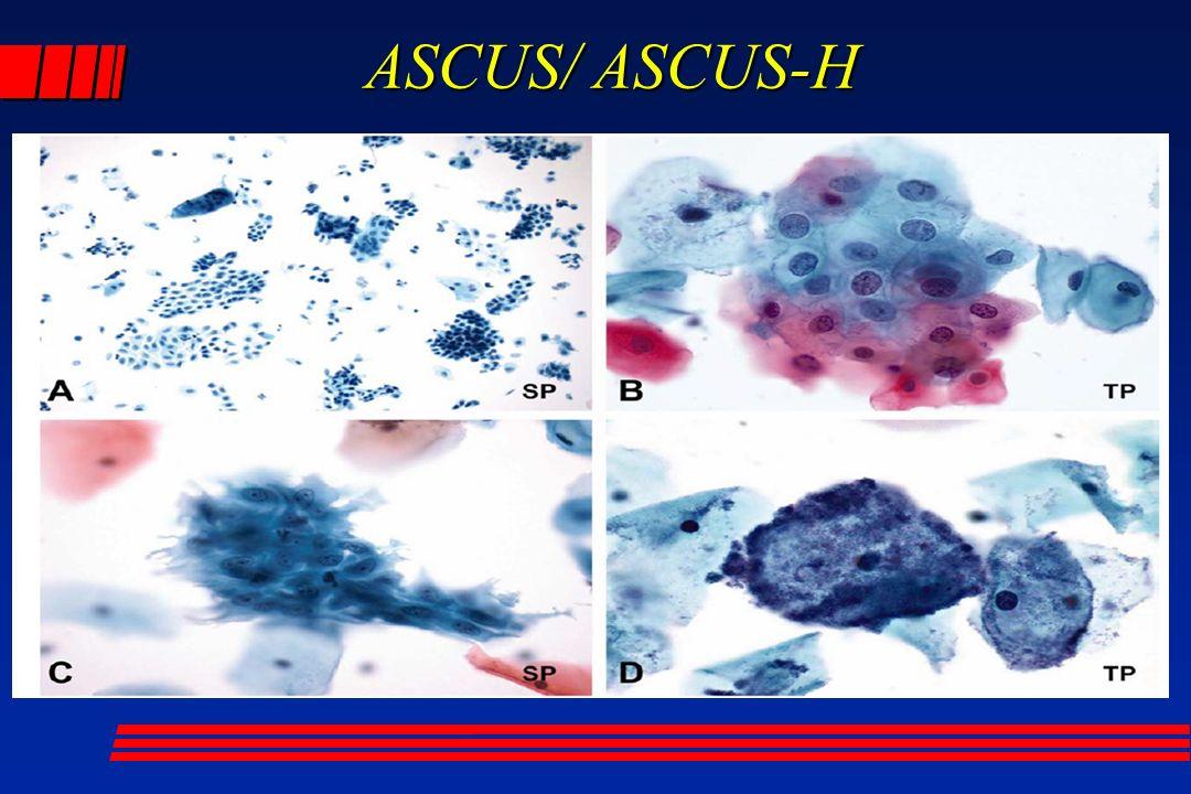 ASCUS/ ASCUS-H