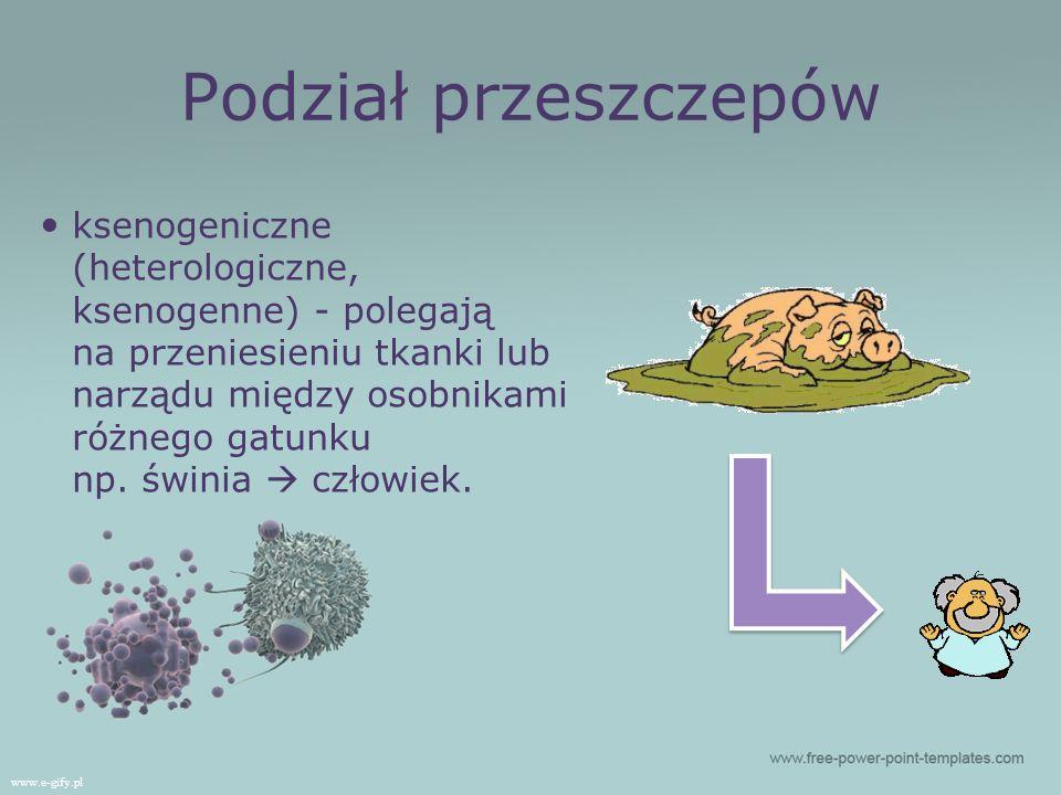 Podział przeszczepów