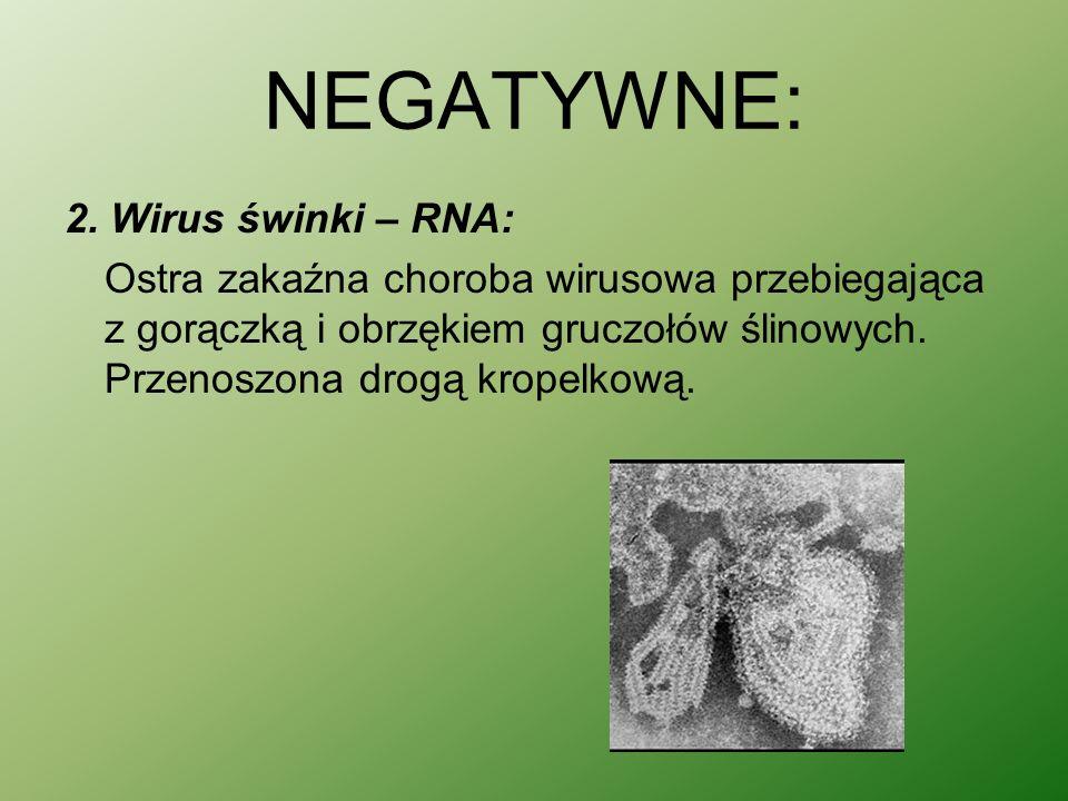 NEGATYWNE: 2. Wirus świnki – RNA: