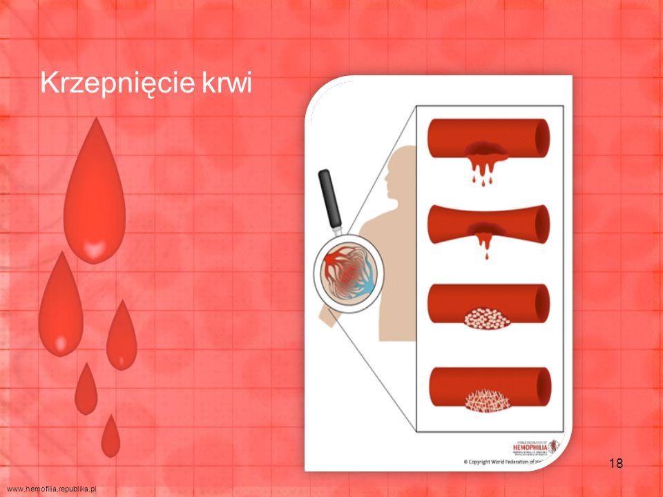 Krzepnięcie krwi www.hemofilia.republika.pl