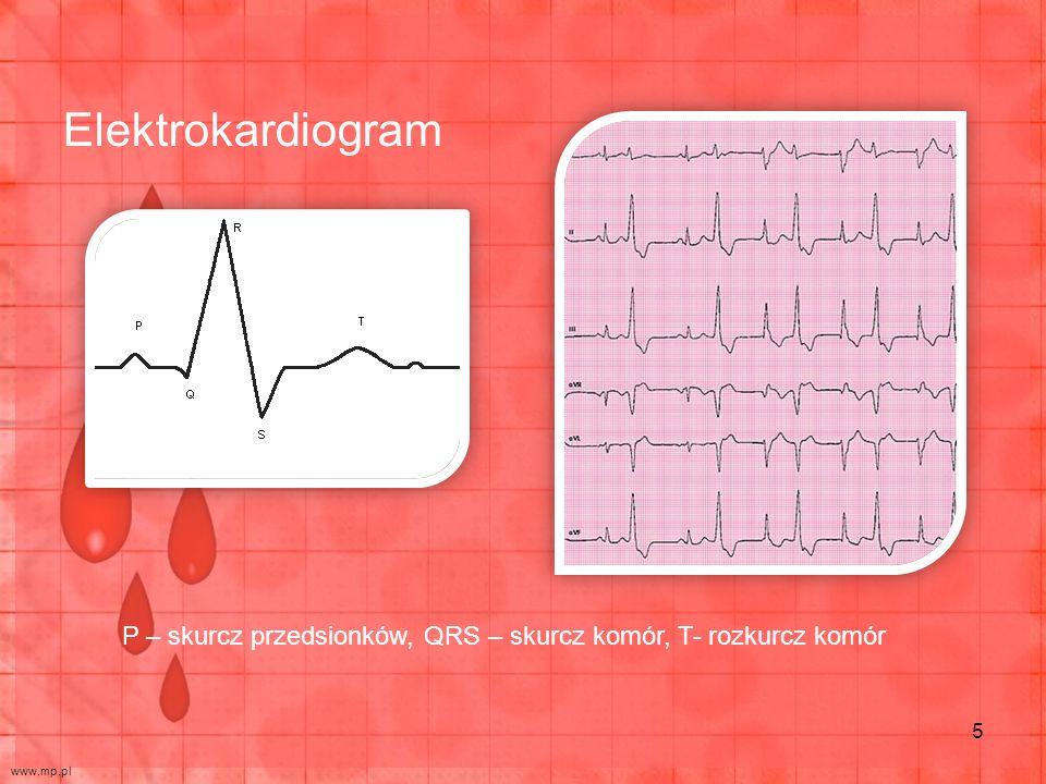 Elektrokardiogram P – skurcz przedsionków, QRS – skurcz komór, T- rozkurcz komór www.mp.pl