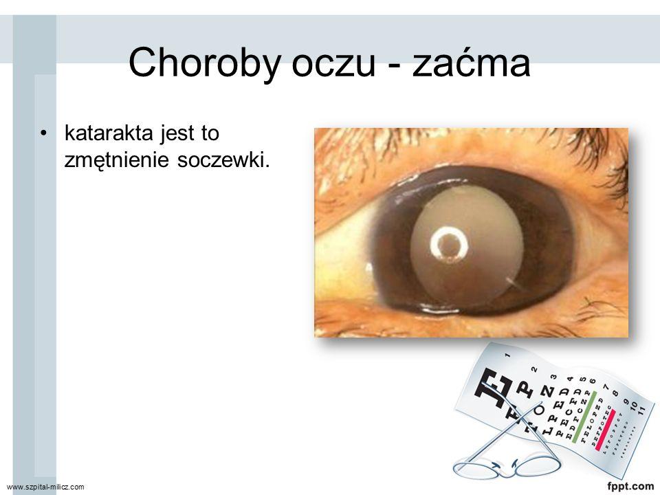 Choroby oczu - zaćma katarakta jest to zmętnienie soczewki.