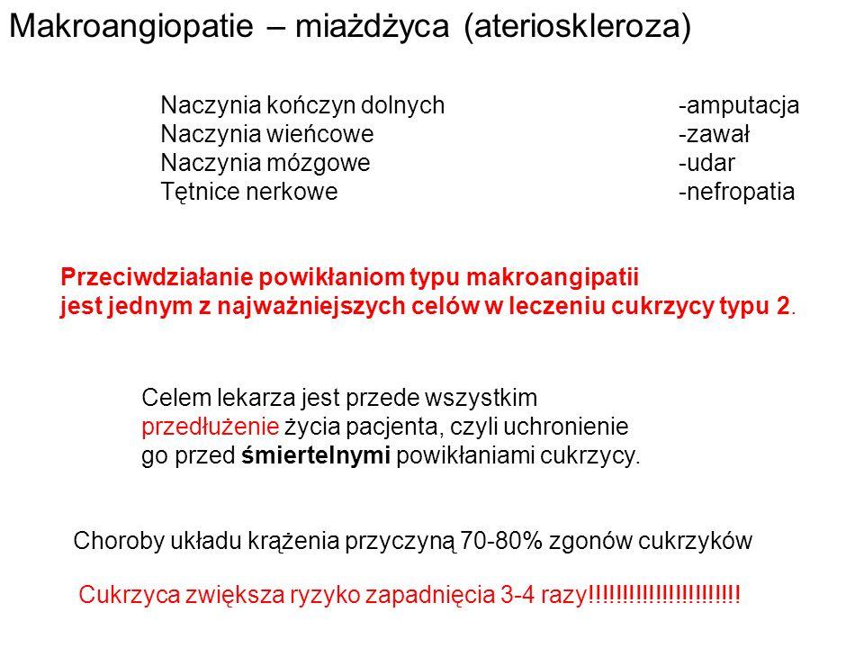 Makroangiopatie – miażdżyca (aterioskleroza)