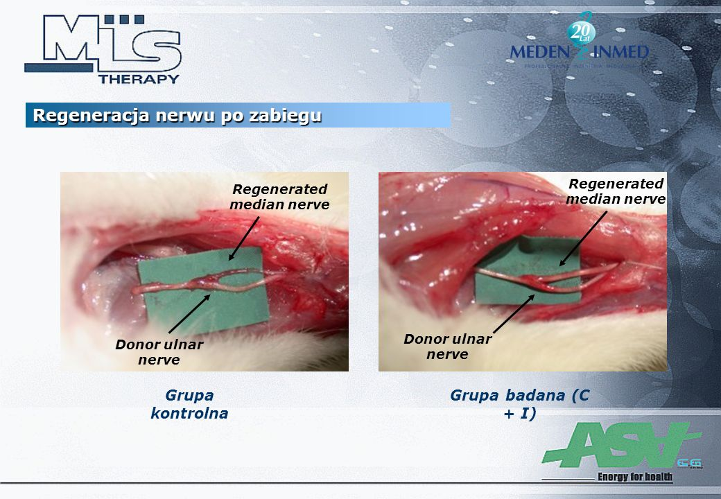 Regenerated median nerve Regenerated median nerve