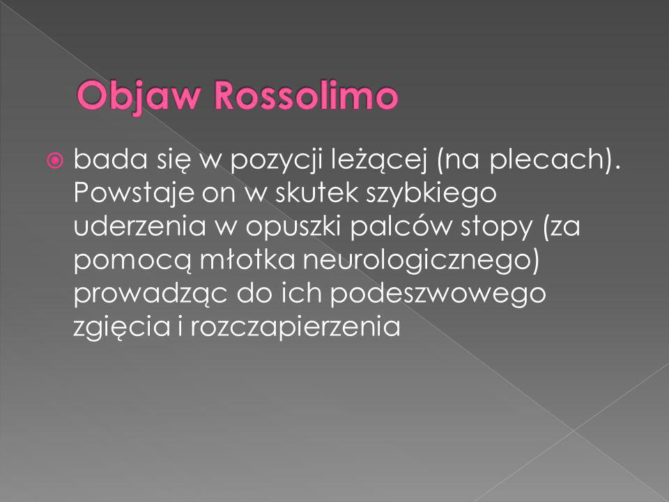 Objaw Rossolimo