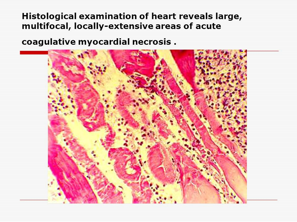 Histological examination of heart reveals large, multifocal, locally-extensive areas of acute coagulative myocardial necrosis .