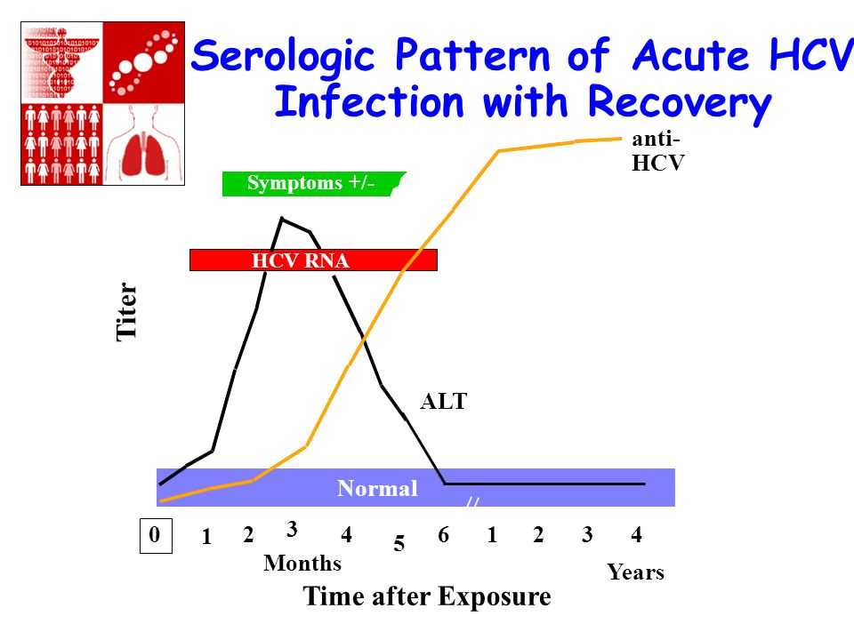 Serologic Pattern of Acute HCV Infection with Recovery