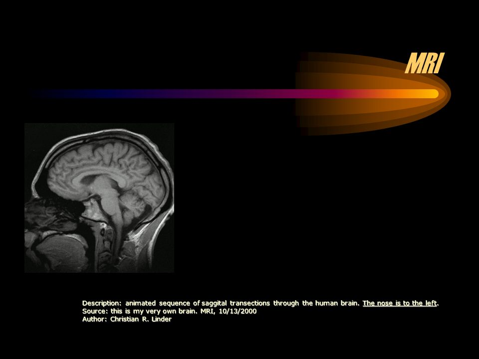 MRI Description: animated sequence of saggital transections through the human brain. The nose is to the left.