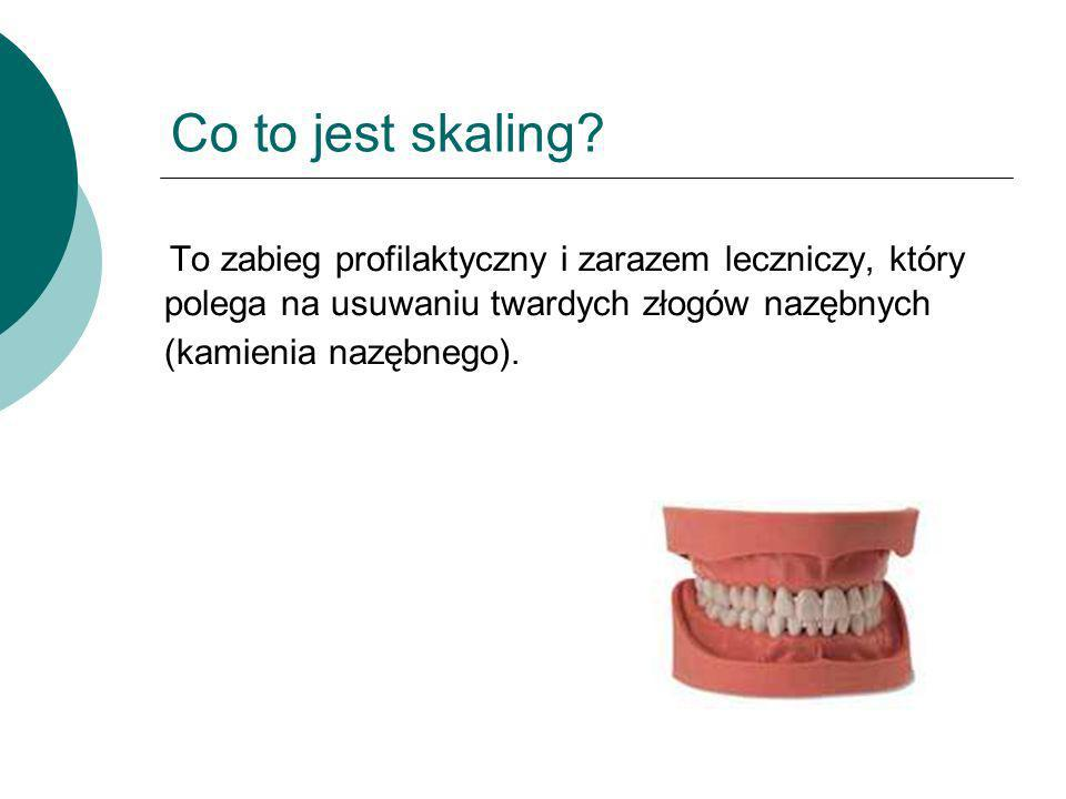 Co to jest skaling.