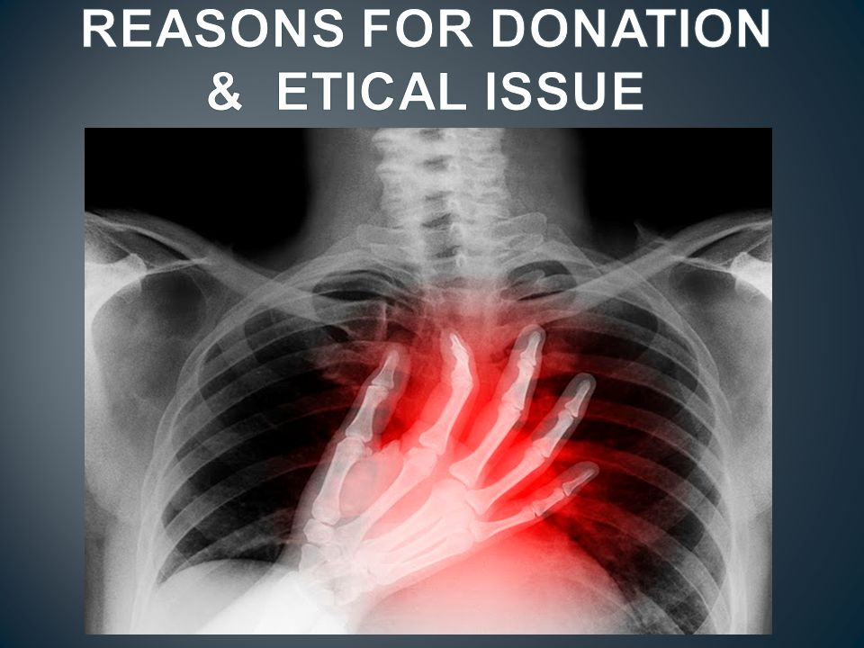REASONS FOR DONATION & ETICAL ISSUE