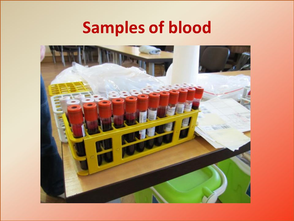 Samples of blood