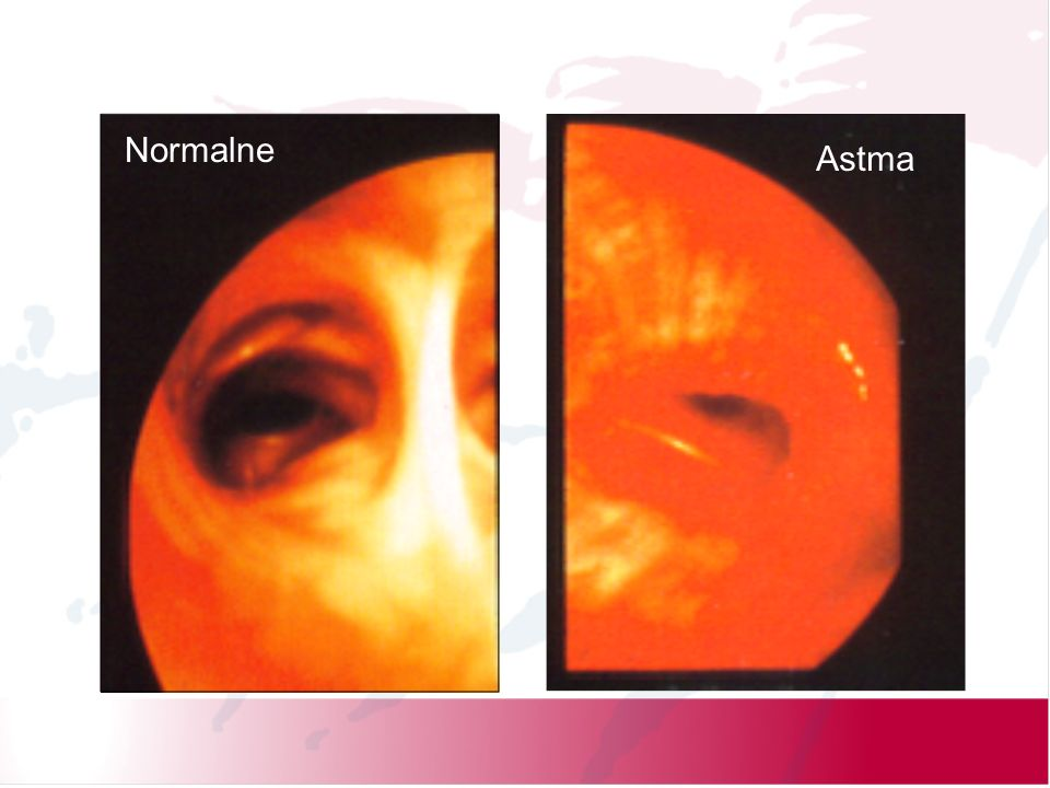 Normalne Astma. Asthma is a chronic inflammatory disorder of the airways.