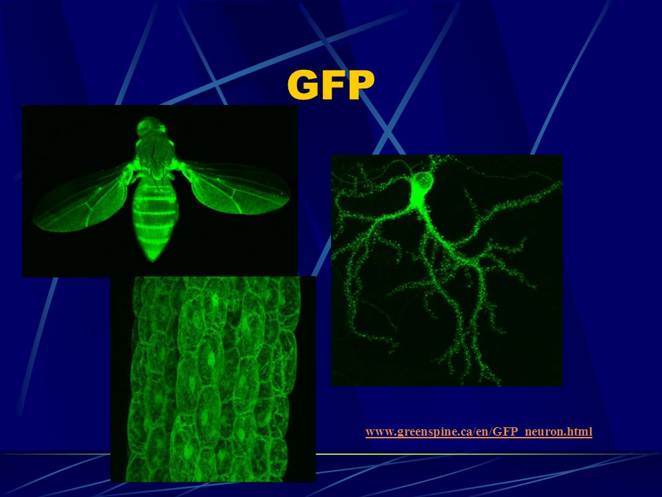 GFP www.greenspine.ca/en/GFP_neuron.html